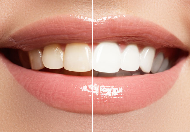 _services_whitening